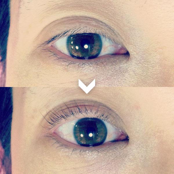 眼瞼下垂にも対応